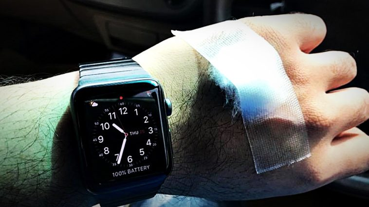 Apple Watch Detect Abnormal Heart Rhythms Cover
