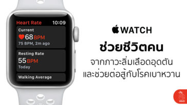 Apple Watch Save Life Blood Clots